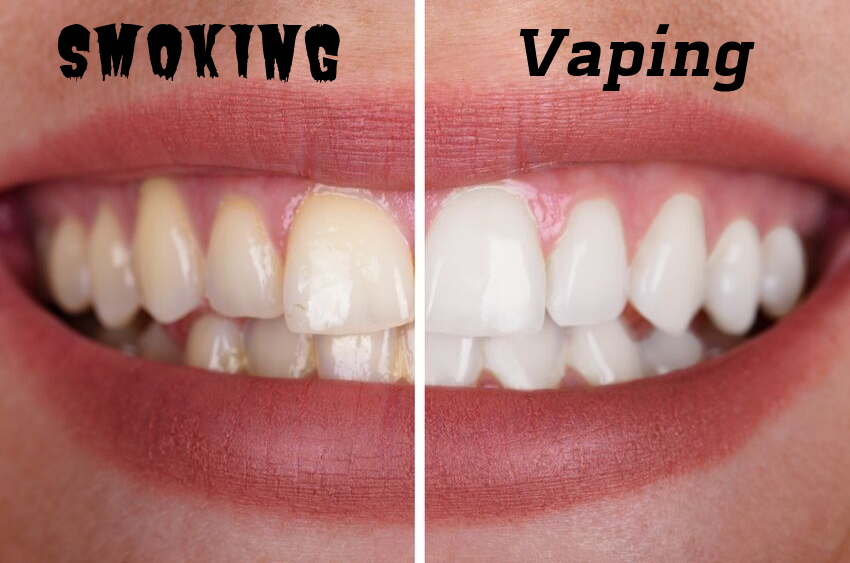 vaping-doesnt-stain-teeth-like-smoking